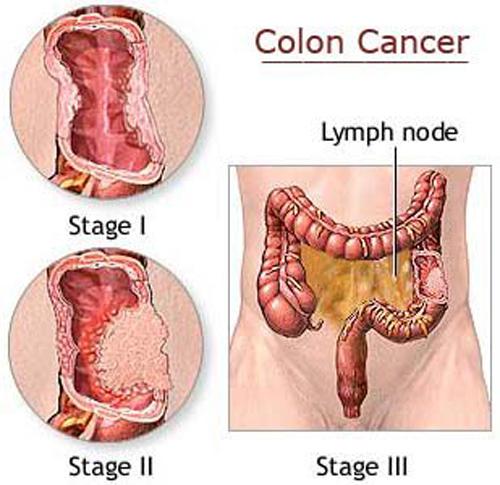 โรคมะเร็งลำไส้ใหญ่